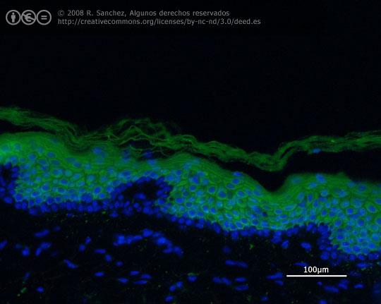 Inmunofluorescencia de Keratina-10 en piel humana